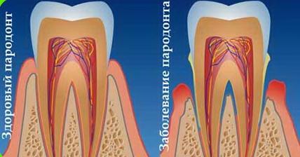 заболевание пародонтита и здоровый зуб
