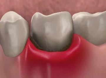 пародонтология зубов