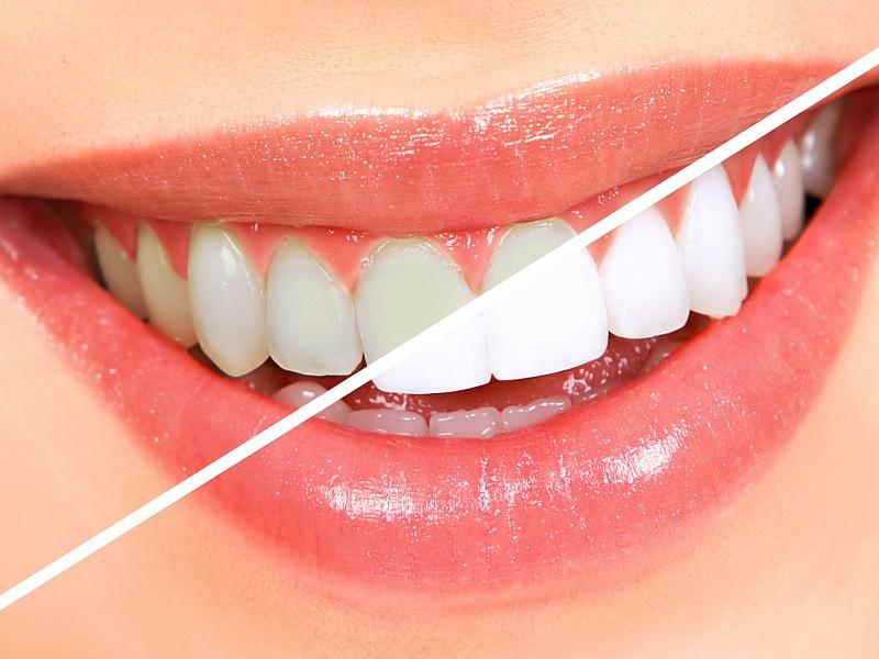 7 фактов про отбеливание зубов
