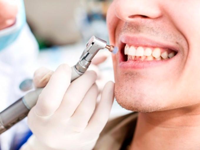 Безопасна ли профессиональная чистка зубов