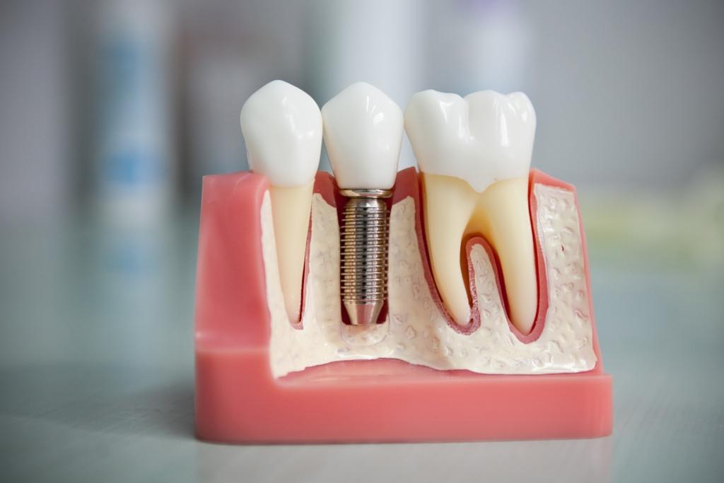 Виды и лучшие методы протезирования зубов