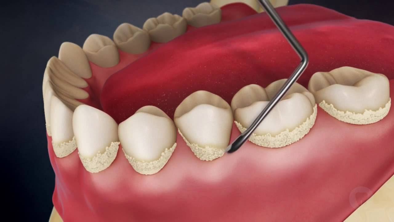 ультразвуковая чистка зубов в казани