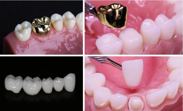 золотая коронка на зуб