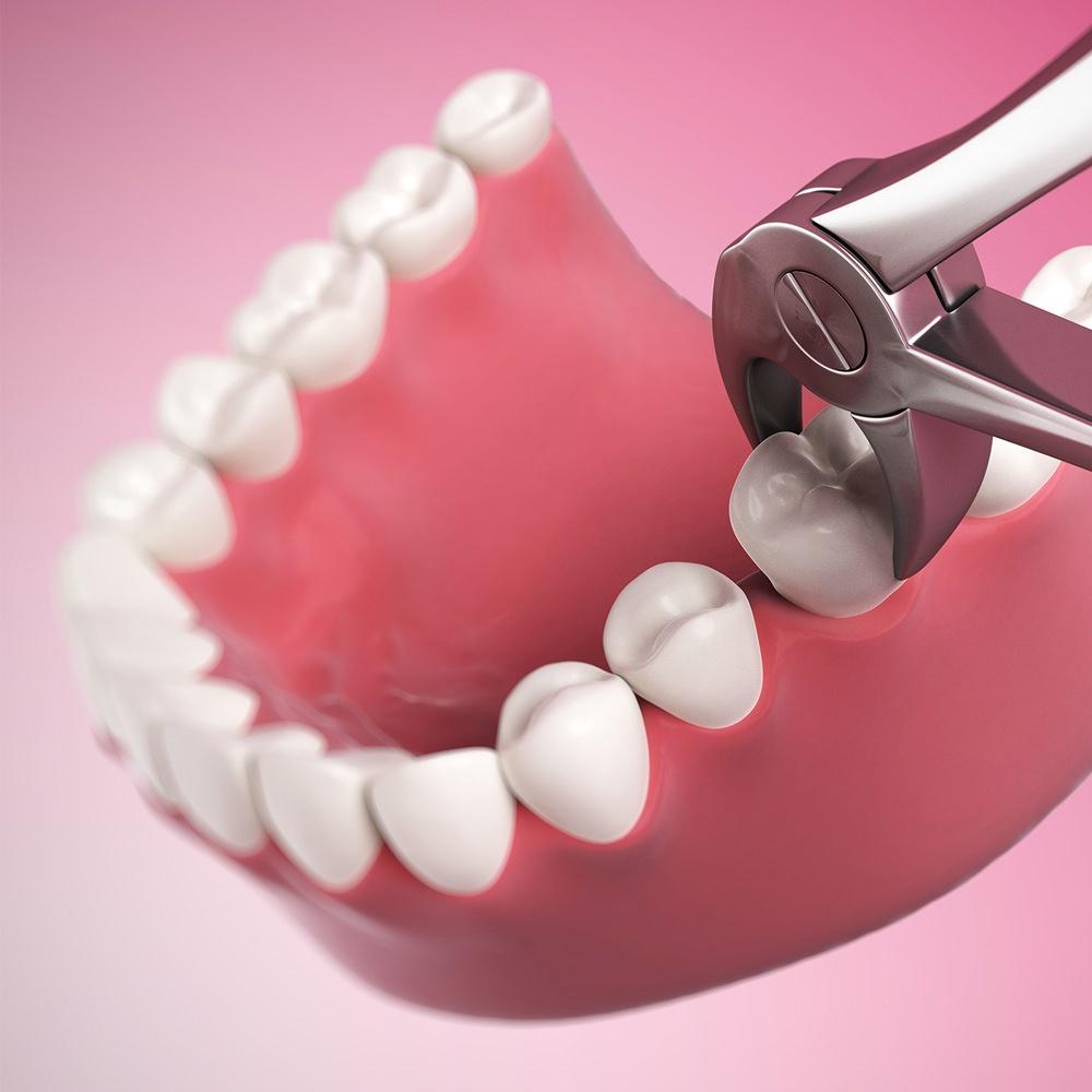Как проводится удаление зуба