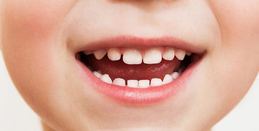 Риски раннего удаления молочного зуба