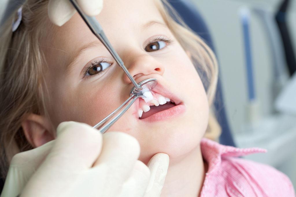 Особенности удаления молочного зуба