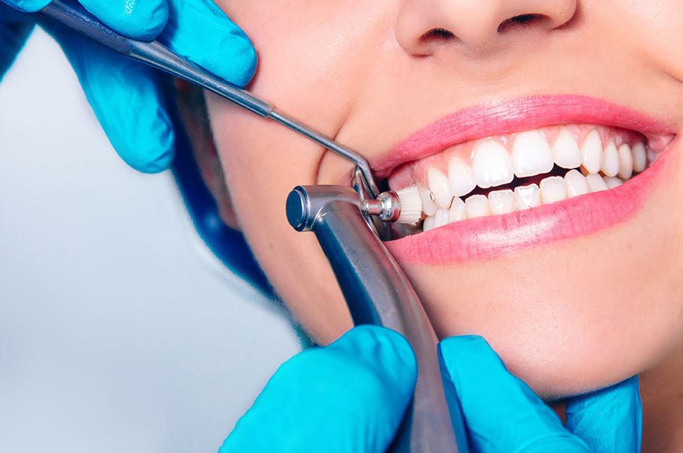 профессиональная читка зубов