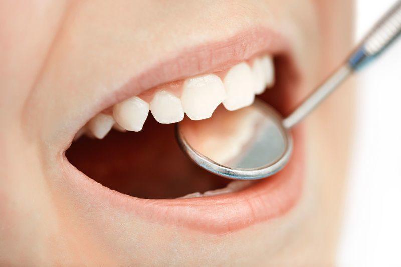 Что делать со сломанным зубом