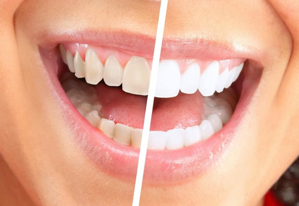 Что такое отбеливание зубов?