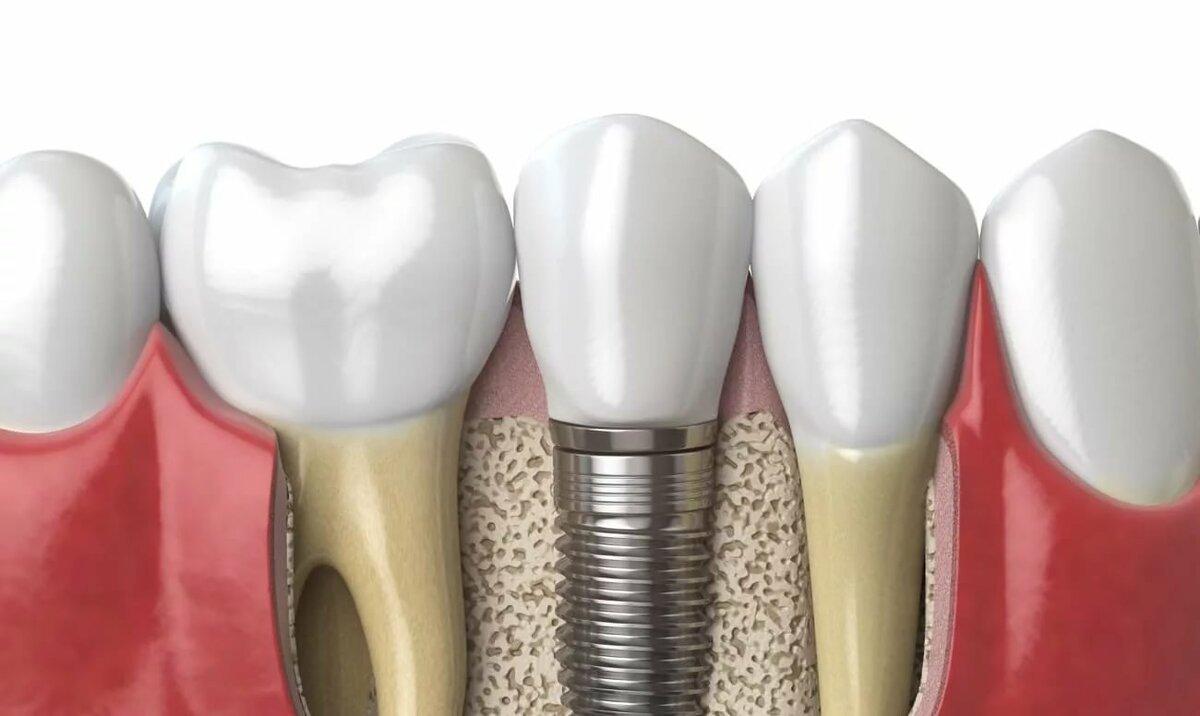 Показания и противопоказания костной пластики