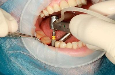 Имплантация зуба сразу после удаления