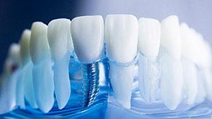 имплантация зубов удаление фото