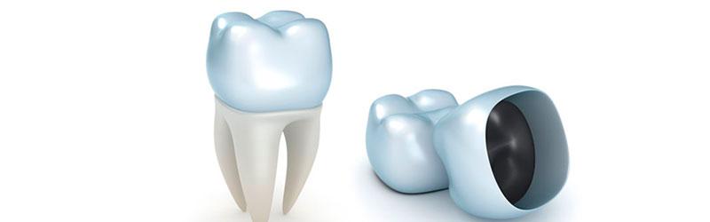 коронка зубная фото