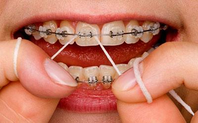 зубная нить брекеты фото
