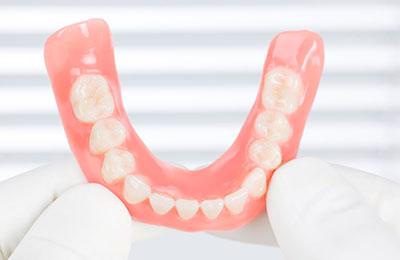 Фиксация зубных протезов: как носить съемные зубные протезы