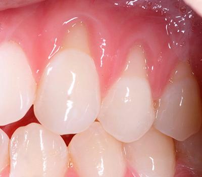 десна отходит от зуба фото