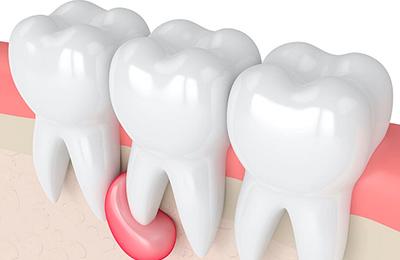 Киста зуба: что это такое