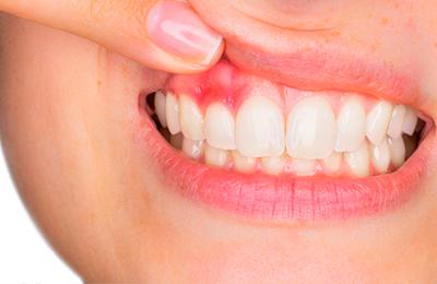 Десна отходит от зуба: причины и что делать