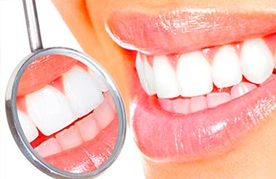 Зубной камень: как убрать