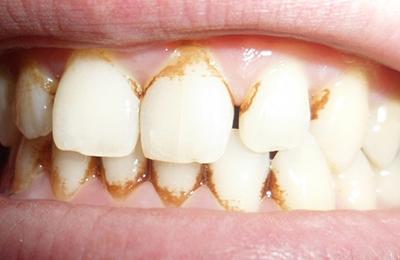 зубной камень вид фото