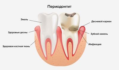 Периодонтит зуба — что это такое