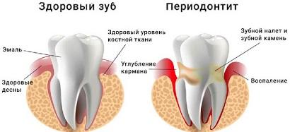 периодонтит зуба что это такое фото