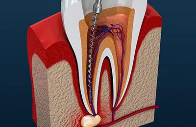 Хроническое воспаление зуба: как лечить