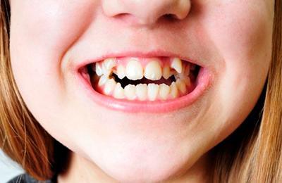 Кривые зубы у ребенка — что делать