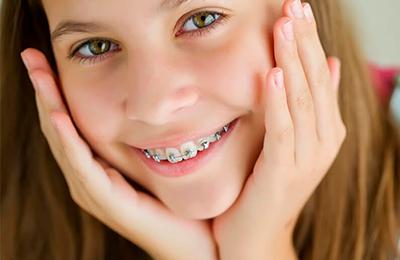 В каком возрасте ставят брекеты детям и другие ответы на вопросы