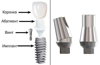 Абатмент в стоматологии: что это и для чего он нужен