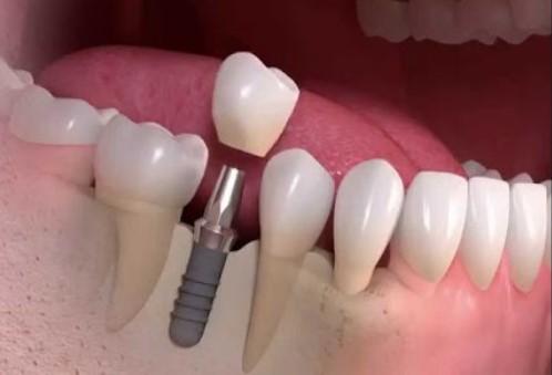 этапов имплантации зубов фото