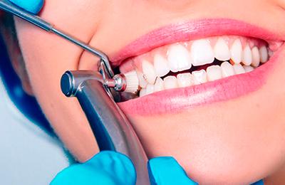механическая чистка зубов фото
