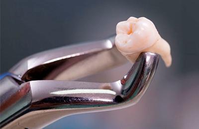 показания и противопоказания к удалению зуба фото