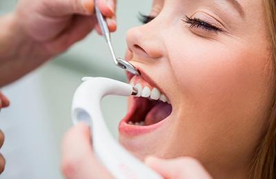 ультразвуковая чистка зубов фото