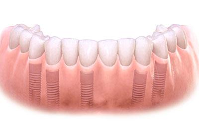 несъемные протезы зубов фото