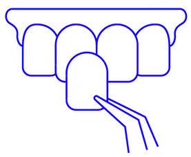 виды зубных имплантов картинка