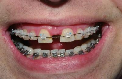 как убрать щель мужду зубами брекетами фото