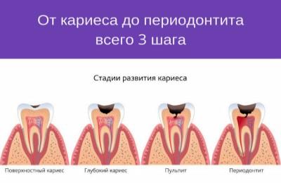 диагностика пульпита и периодонтита фото