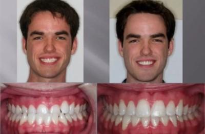 асимметрия лица фото