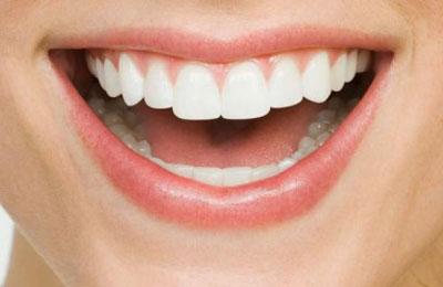 как называется наращивание зуба фото