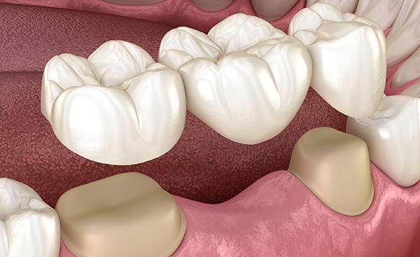 Технология зубного моста