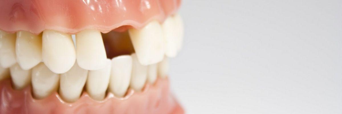 адентия челюсти фото