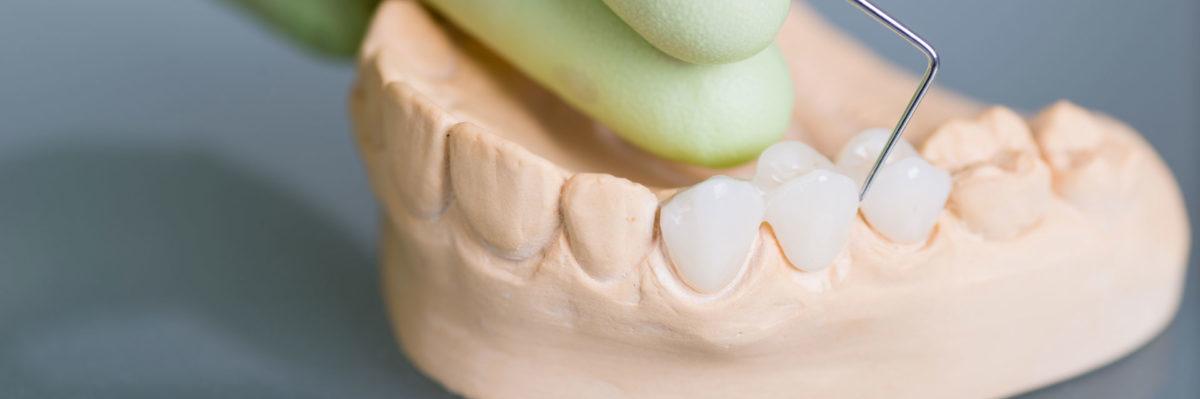 зубной протез бабочка фото